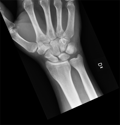 Having My Hand X-Rayed in Finland